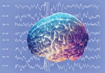 写真:脳波