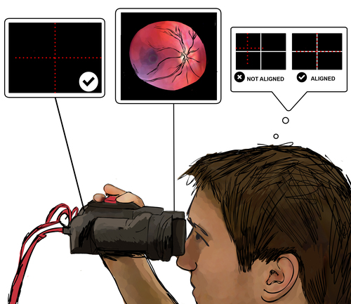 eyeSelfie: Self Directed Eye Alignment Using Reciprocal Eye Box Imaging